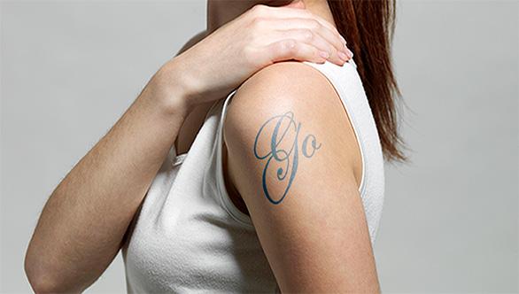 Tattoo Removal Sydney
